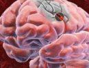 10 лет с паразитом в мозге: техасец долго не понимал причину головных болей