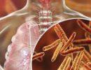Ученые испытали новую схему лечения туберкулеза