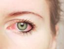 У женщины обнаружили рак глаза очень редкого вида